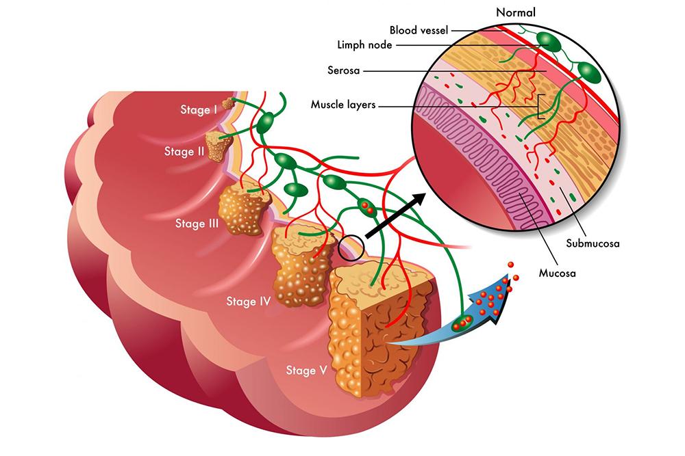Рак прямой кишки Симптомы и признаки стадии диагностика