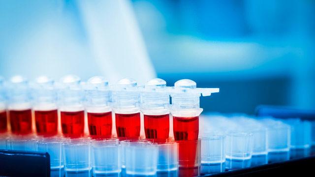 Общий анализ крови система си
