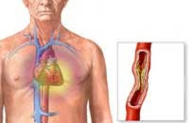 Что может быть после инфаркта миакарда