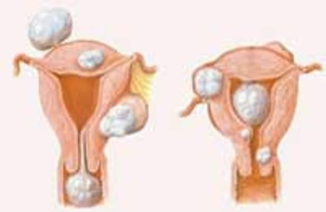 Миома матки - признаки, причины, лечение. Чем опасна миома матки?