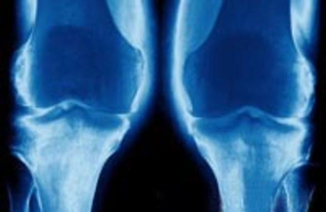 Доа тазобренных суставов замена тазобедреных суставов