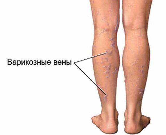 Как и чем лечить варикоз нижних конечностей