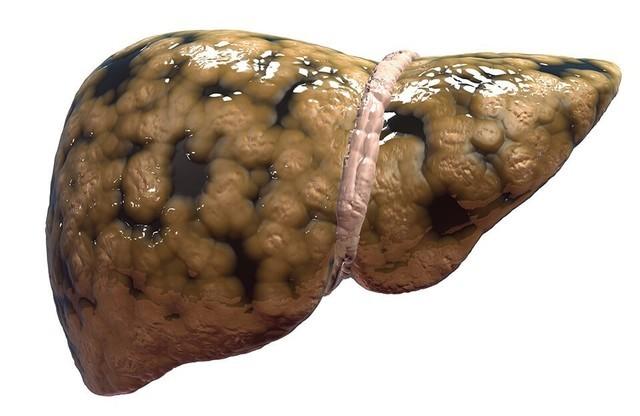 Стеатоз печени и поджелудочной железы. Здоровье печени