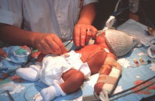 Фото детей рожденных весом 2500 82