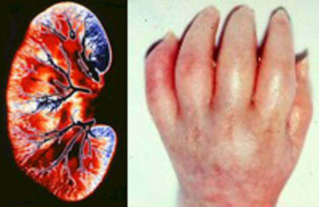 Острая почечная недостаточность - причины и симптомы, диагностика и лечение острой почечной недостаточности
