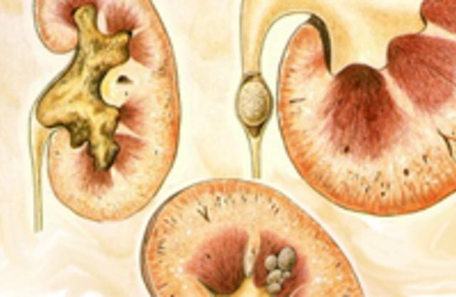 Камни в почках (мочекаменная болезнь), причины, симптомы, лечение, профилактика камней в почках