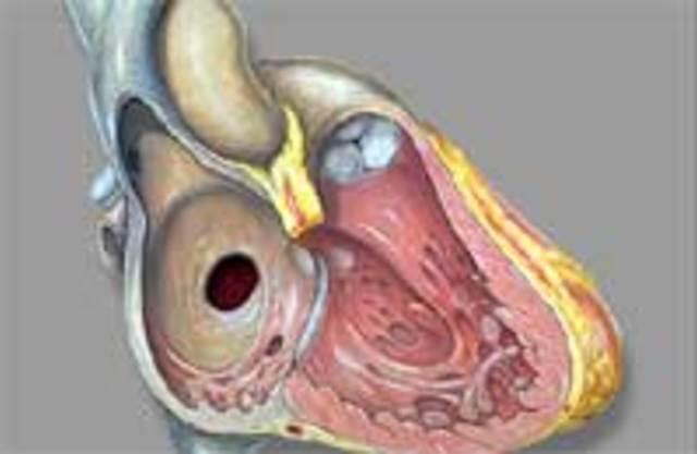 Врожденный порок сердца двустворчатый аортальный клапан — Сердце