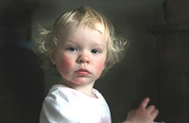 аллергия ребенок 9 лет