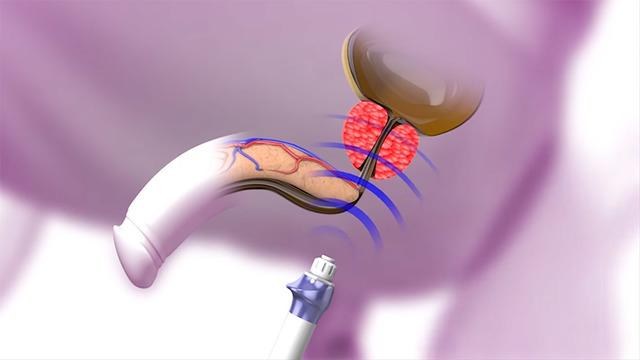 Лечение простатита УВТ: с комфортом и без побочных эффектов