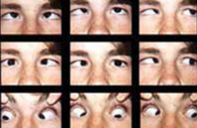 Как видят косоглазые люди фото