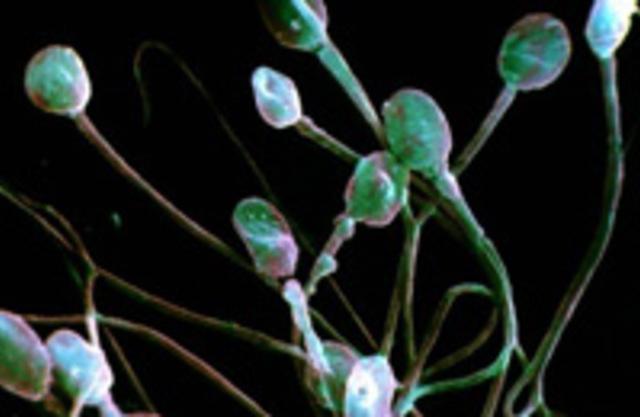 Факторы влияющие на качество спермы