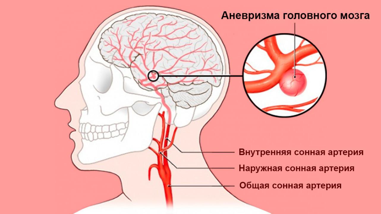 Профилактика аневризмы сосудов головного мозга