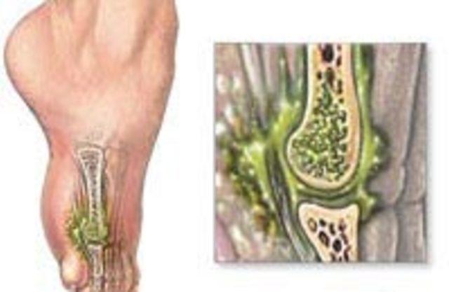 Остеомиелит. Клинические рекомендации.