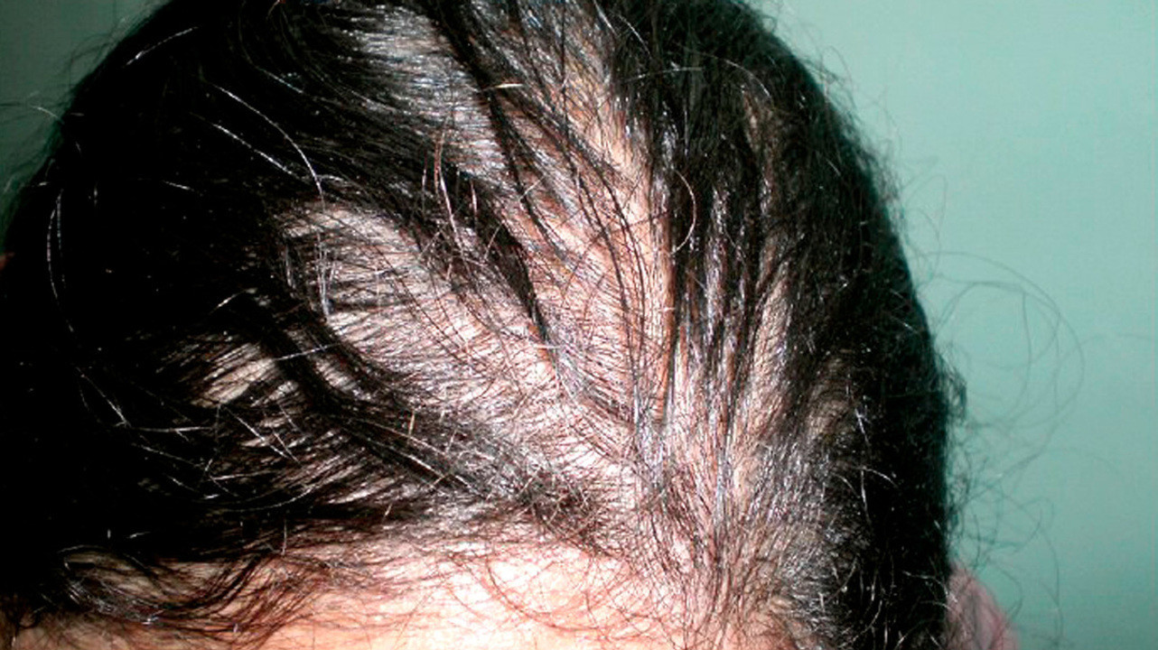 Поредение волос при гипотериозе