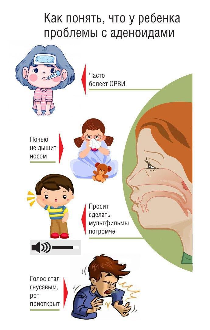 Памятка по симптомам воспаления аденоидов у ребенка.