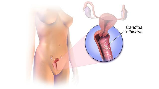 Чем отличается молочница от вагиноза