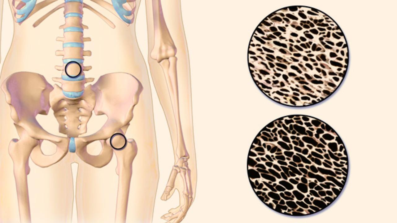 Причины остеопороза позвоночника