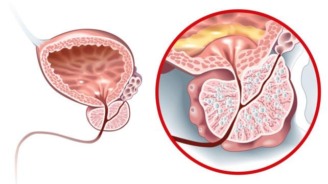 adenoma prostatae wikipedia)