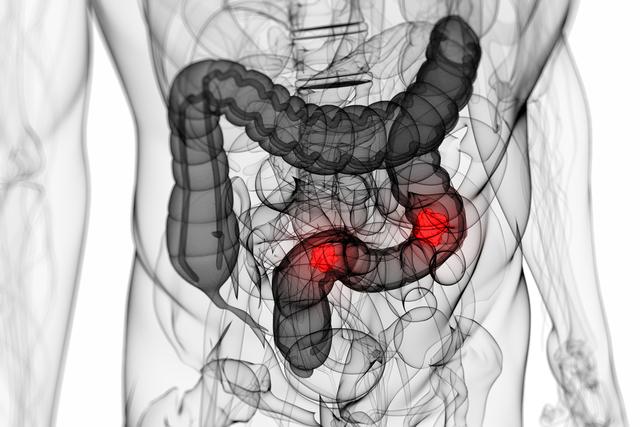 Размеры опухоли кишечника