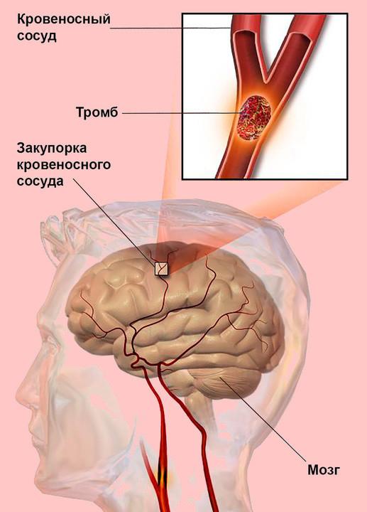 Эмболия легочной артерии симптомы