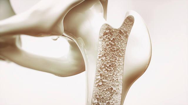 Диагностика остеопороза. Анализы и диагностика