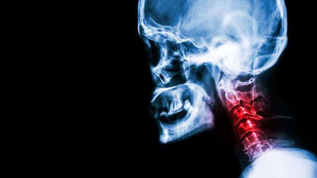 Какой врач лечит спондилез грудного отдела позвоночника