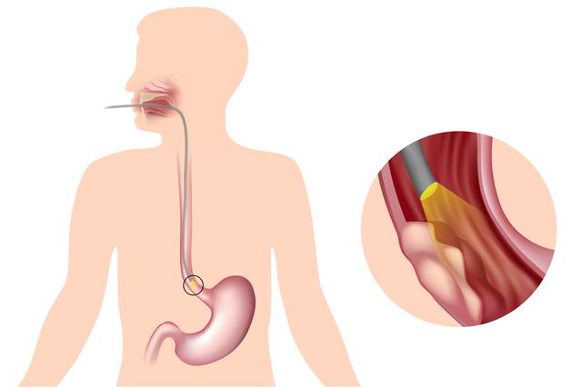 Лечение пищевода при раке пищевода