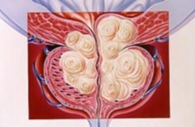 Урология простата аденома как лечить