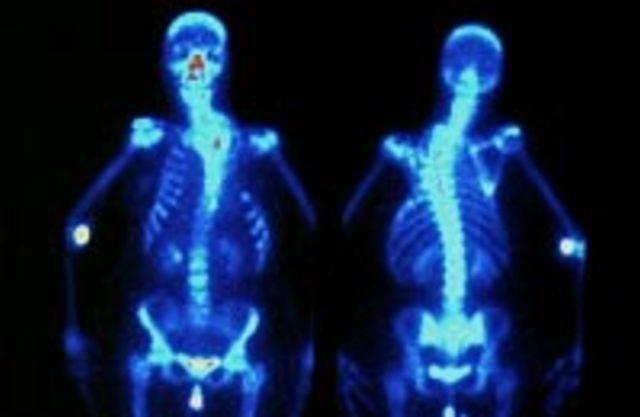 Нарушение осанки: виды, лечение и профилактика, причины