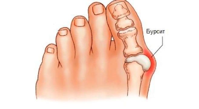 Косточка на ноге причины образования и симптомы