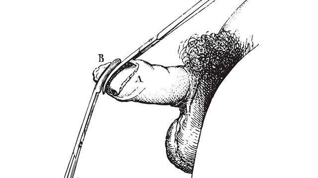 Оргазм при обрезание