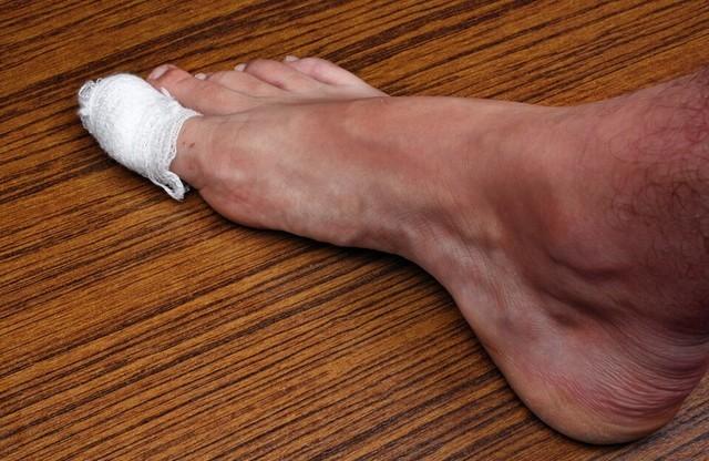 Лечение панариция на пальце руки в домашних условиях