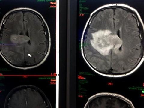 У томского журналиста уменьшилась опухоль мозга после экспериментального лечения в США