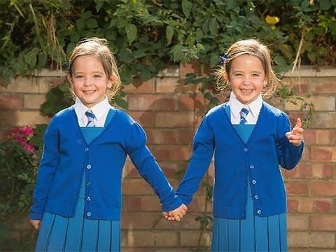 Разделенные сиамские близнецы идут в школу