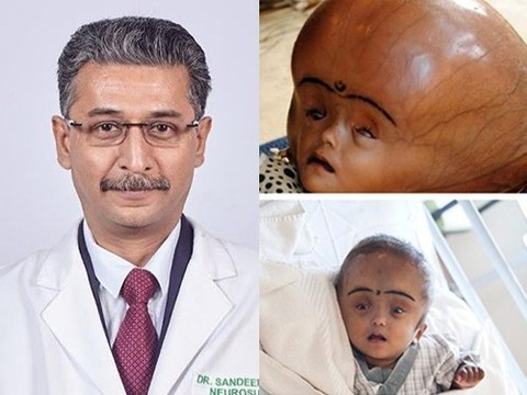Доктор, который уменьшает головы