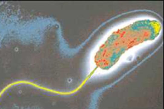 Эпидемия холеры на востоке Индии унесла [десятки жизней]