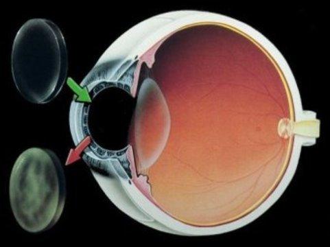 Врачи восстановили британцу зрение [с помощью стволовых клеток]