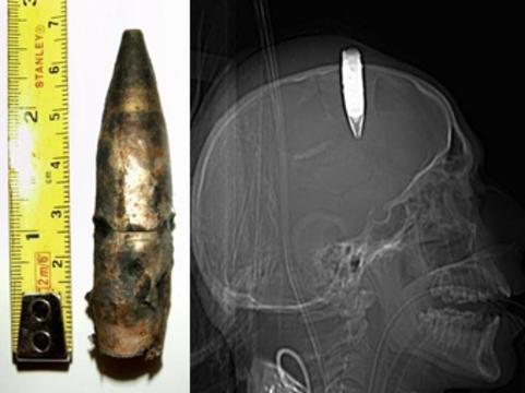 Хирурги в бронежилетах удалили [неразорвавшуюся пулю из головы пациента]