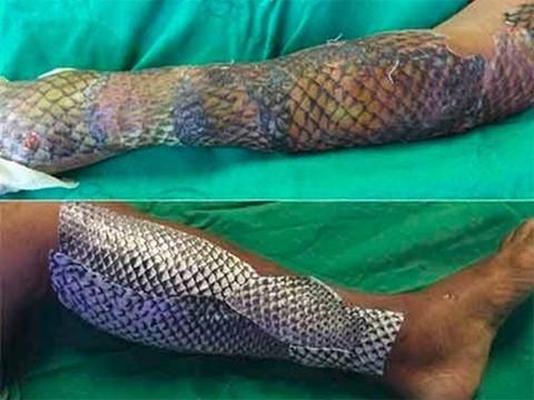 Бразильцы лечат ожоги кожей тилапии