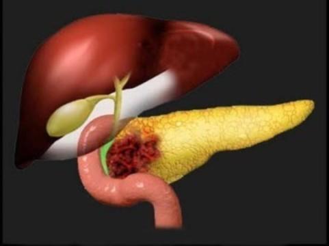 [В США одобрили] новое лекарство от рака поджелудочной железы