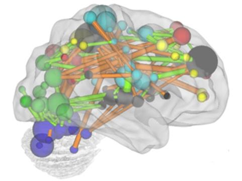Разработан метод [оценки зрелости мозга с помощью МРТ]