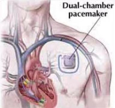 Стволовые клетки придут на смену электронным кардиостимуляторам
