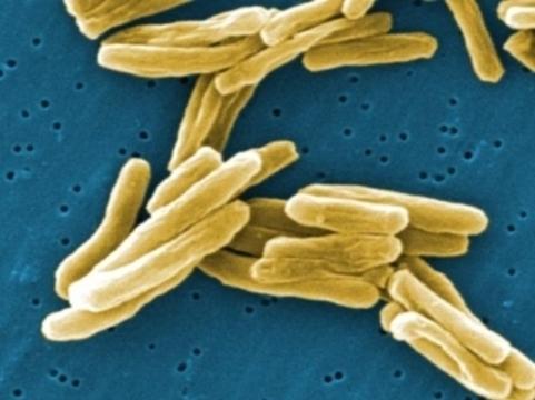 Смертность от туберкулеза в России [снизилась за год на семь процентов]