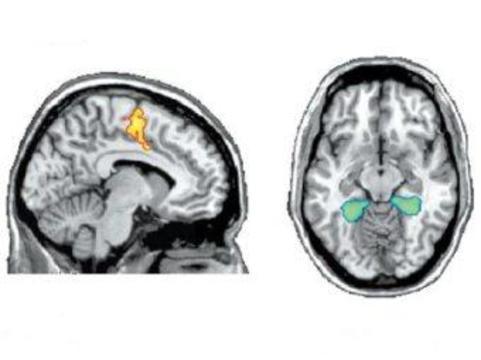 Пациента в вегетативном состоянии [научили общаться с помощью МРТ]
