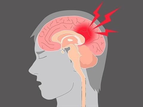 Сотрясение мозга в три раза повышает риск суицида