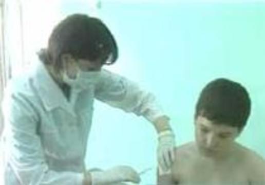 В Челябинской области зарегистрирована вспышка гепатита А
