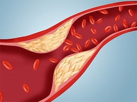 """Ученые утверждают, что """"плохой холестерин"""" - просто раздутый миф"""