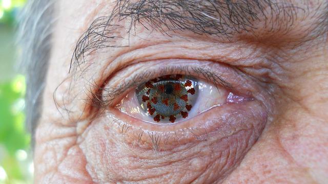 SARS-Cov-2 нашли в глазах 64-летней пациентки через два месяца после выздоровления