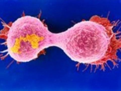 У высоких женщин нашли [повышенный риск развития рака]