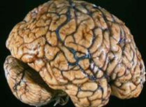 """В мозгу нашли """"систему раннего оповещения"""""""